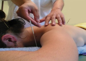 Care sunt beneficiile oferite de acupunctura?